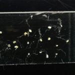 閲覧注意!テープに貼り付けたアタマジラミの卵の画像